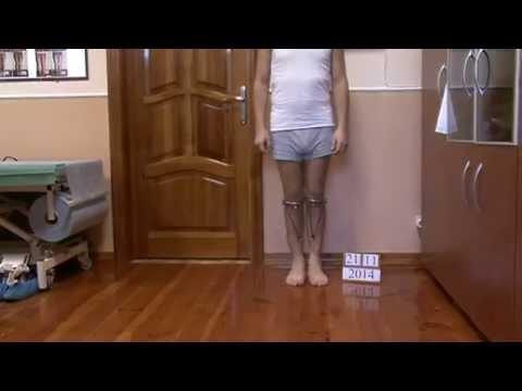 La diagnosi valgus da piedi piatti è fatta dal dottore