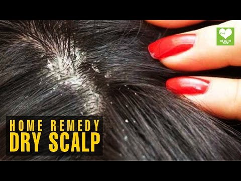 Video Dry Scalp (सूखी सिर की त्वचा) - Home Remedies | Health Tips | Educational Video