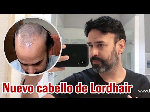 Nuevo cabello de Lordhair | Sistemas capilares personalizados para hombres