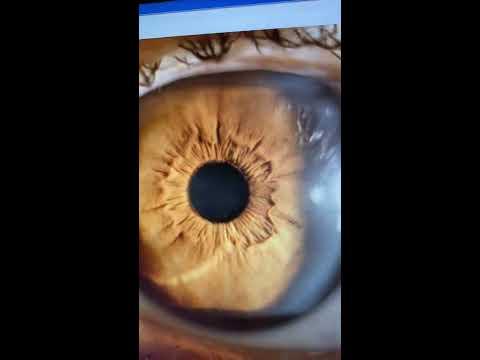 Gyermekgyógyászati szemészgyakoriságú kötőhártyagyulladás