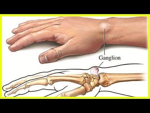 Arthritische Gelenke behandelt