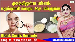 Beauty Tips /Remedy For Open Pores And Black Spots/முகத்திலுள்ள பள்ளம்,கரும்புள்ளி மறைய/Anitha Kuppu
