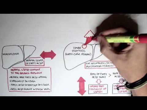 Video Liver Disease Part I