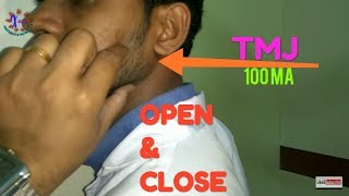 T M JOINT OF FACIAL BONE CLOSE AND OPEN MOUTH POSITION, ANATOMY AND PHYSIOLOGY PART - 70