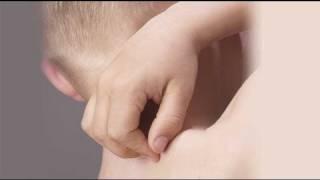 Dermatitis atópica. Prevención y tratamiento