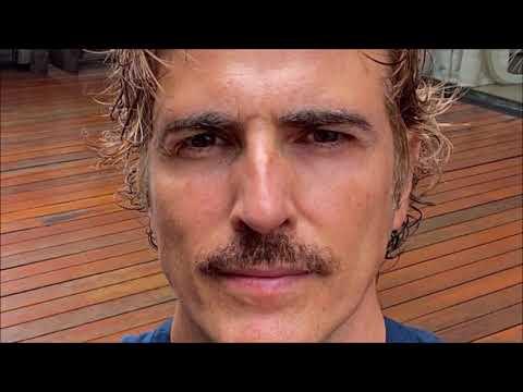 Reynaldo Gianecchini surpreende e realiza rejuvenescimento facial