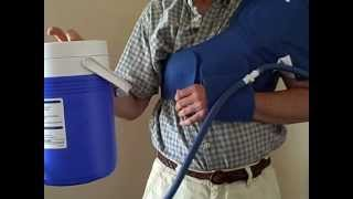 Video: Aircast Shoulder Cryo/Cuff Only