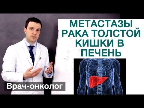 Рак толстой кишки - метастазы рака толстой кишки в печень. Врач-онколог Владимир Лядов