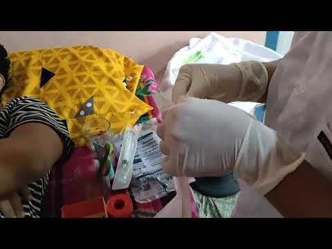 Prosztatagyulladás és kezelésére szolgáló gyógyszerek