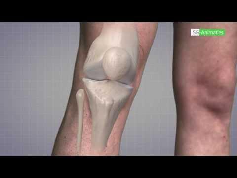 Osteochondrose sacro Lendenwirbelsäule 3 Grad