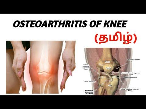 Ce provoacă deformarea articulației cu artroza deformantă