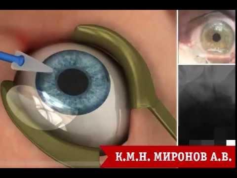 Клиники коррекции зрения в вологде