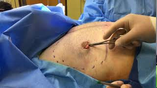 Dr. Reynolds - Liposuction results