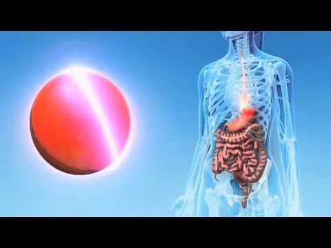 Dolorante dolore ai testicoli negli uomini con il mal di schiena