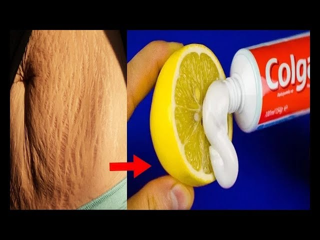 How To Get Rid of Stretch Marks Fast/World's best Remedy for
