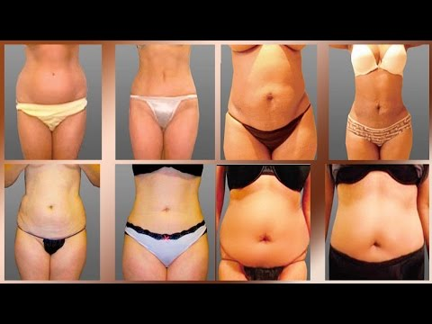 Liposuction-Cosmetic-Surgery-Before-and-After-in-Mexicali-Mexio