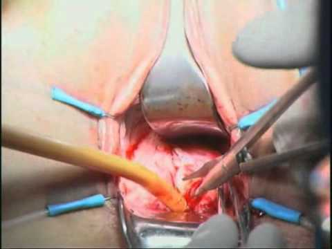 Radiation Induced Vesicovaginal Fistula - Treatment