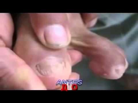 Die Behandlung der Schuppenflechte nach orissu