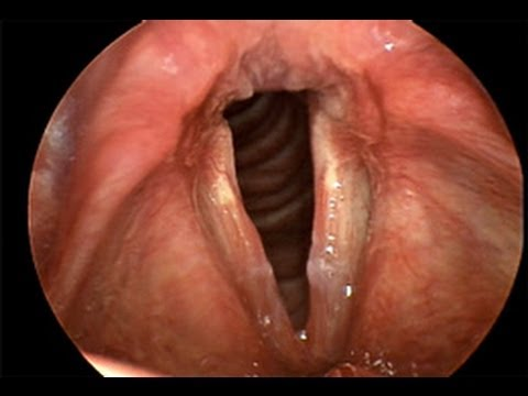 Video Laryngitis - a patient education video