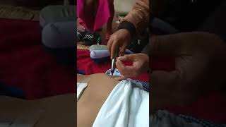 Acupucture Treatment After Lumber Surgery Opendro Laishram