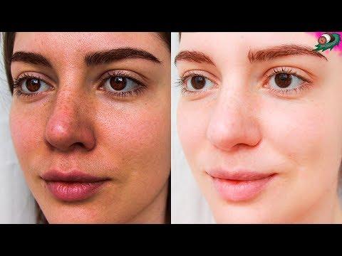 Почему у ребенка пигментное пятно на лице