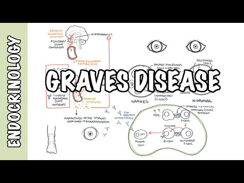 Video Graves Disease (DETAILED) - Overview