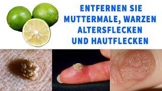 Entfernen Sie Muttermale, Warzen, Altersflecken & Hautflecken mit diesen natürlichen Heilmitteln