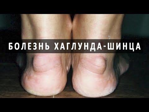 Что нужно знать о болезни Хаглунда-Шинца
