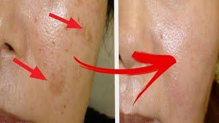 Remove Age Spots/ Liver Spot Naturally | Dr. Vivek Joshi