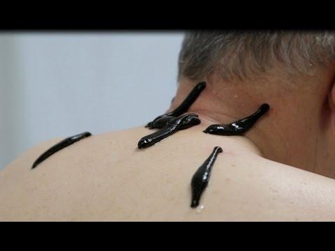 Кто сделает массаж простаты видео