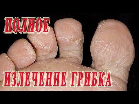 Gribok der Nägel auf den Fingern der Beine die Behandlung von den Volksmethoden