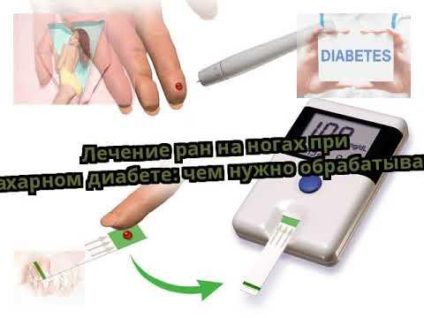Точный диагноз диабет