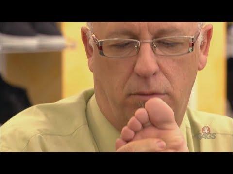 La thrombose des veines profondes des membres inférieurs lfk