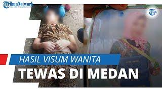 Tak Ada Tanda Pemerkosaan dan Sedang Datang Bulan, Begini Hasil Visum Wanita yang Tewas di Medan