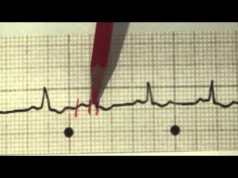 Hypertension 2 Schritt 3 Grad Risiko 4