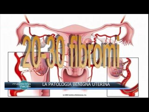 Trattamento dellipertensione in pazienti con malattia renale cronica