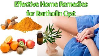 Effective Home Remedies for Bartholin Cyst Treatment