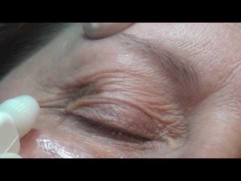 Non-Invasive Blepharoplasty with Plexr