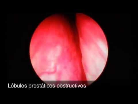 Tratamientos del cáncer de próstata alternativos