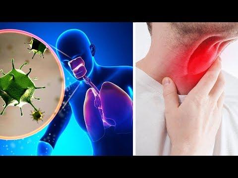 5 Tipps um verschleimte Bronchien und Schleim aus dem Rachen loszuwerden!