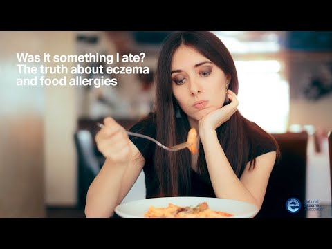 Was it something I ate? The truth about eczema and food allergies