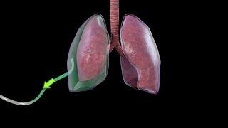 Treatment of Pneumothorax