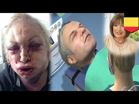 Plastic surgery dibdib Minsk