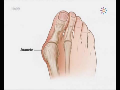 เท่าเทียม Varus พิการเท้า
