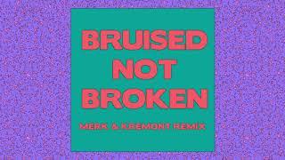 Matoma   Bruised Not Broken (feat. MNEK & Kiana Ledé) [Merk & Kremont Remix] {Official Audio}