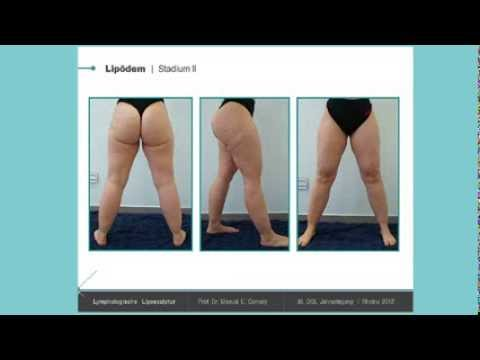 Die Prophylaxe der Varikose auf den Beinen die Rezensionen