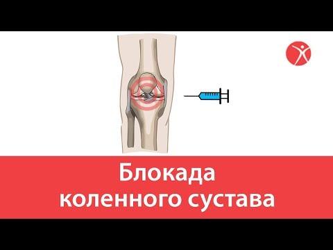 Блокада коленного сустава в клинике Стопартроз