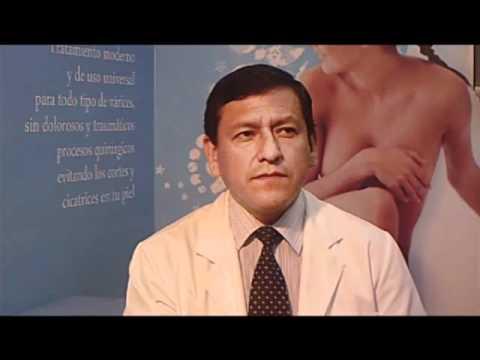 Trattamento di testicoli di varicosity