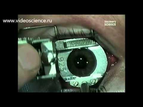 Факторы глазного давления