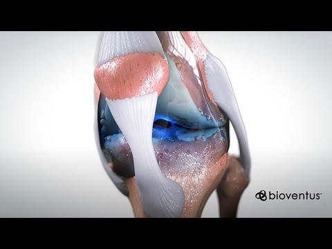Scoate articulația genunchiului